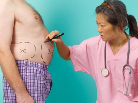 doctor weight loss surgery