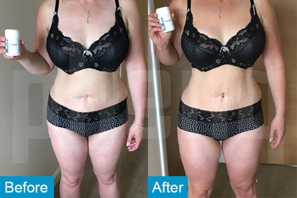 Nicola D Weigh loss Pills before After Phenq