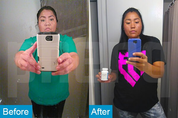 Valerie O Phenq Weight loss Pills Before and After